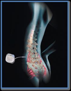 neuromodulación - tratamiento incontinencia fecal