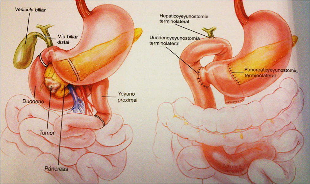 operación páncreas